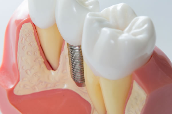 Dental Implants image 2 - Brentwood Village Dental Clinic