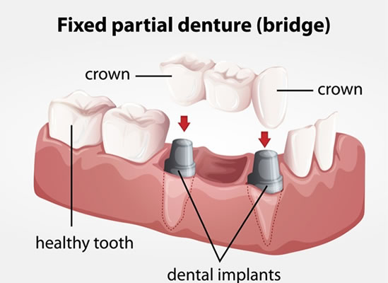 Dental Bridge procedure - Brentwood Village Dental Clinic