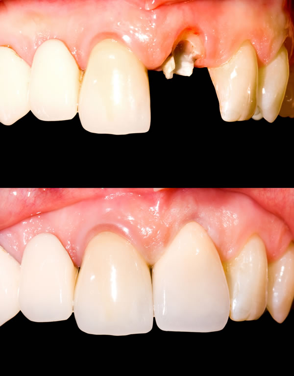 Dental Crowns Image - Brentwood Village Dental Clinic