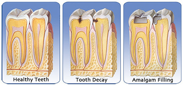Dental Fillings diagram - Brentwood Village Dental Clinic