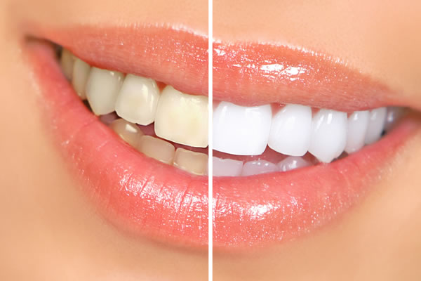 Teeth Whitening Services - Brentwood Village Dental Clinic