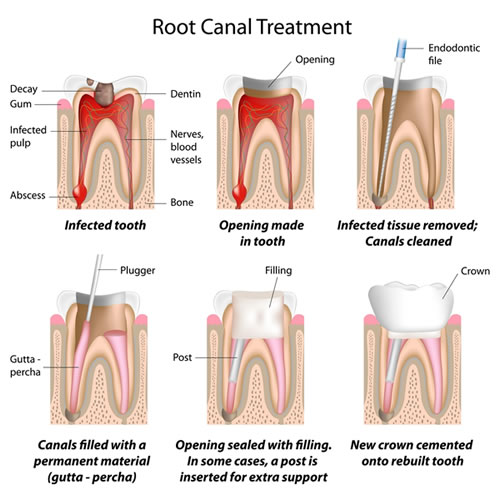 Root Canal Treatment method - Brentwood Village Dental Clinic