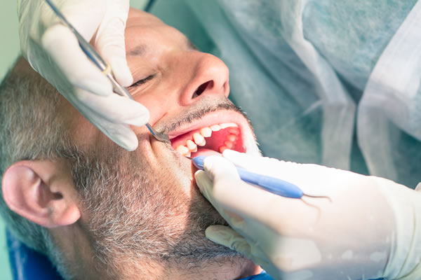 Root Canal Treatment pic - Brentwood Village Dental Clinic
