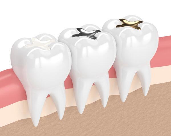 dental filling image