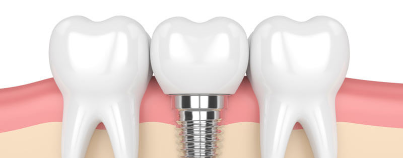 Dental implants example mobile image
