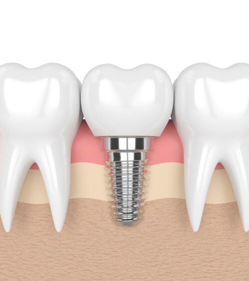 Dental implants example ipad image