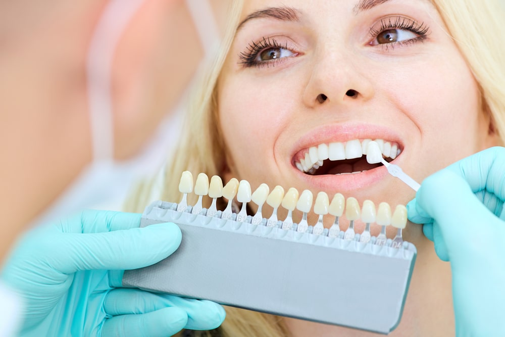 3 types of dental implants explained