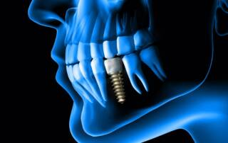 Types of dental implants explained