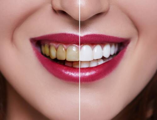 5 common activities that can damage your teeth