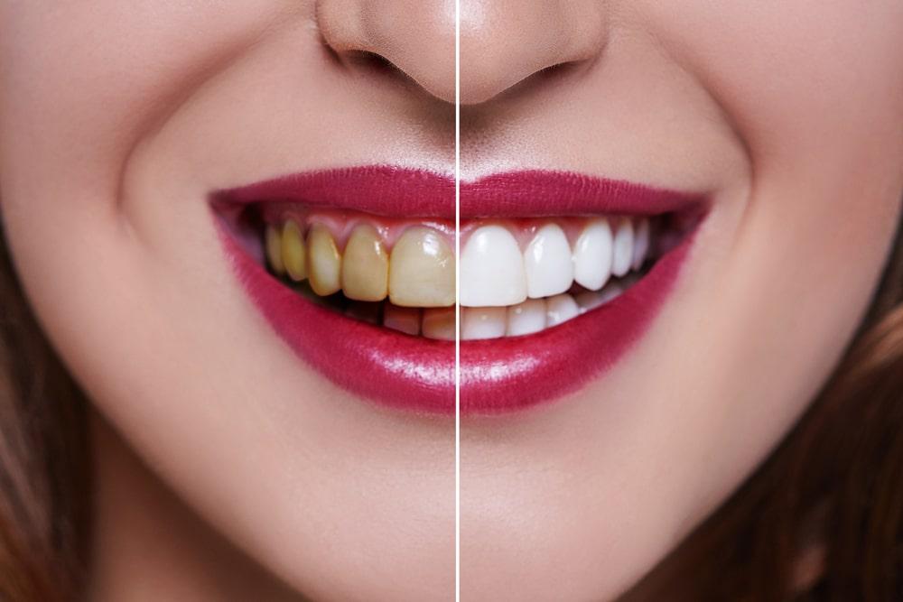NW Calgary dentists