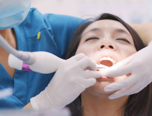 5 Major Signs You Are Due for a Deep Teeth Cleaning