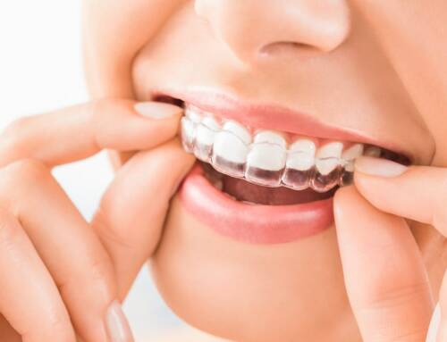 3 steps to straightening your teeth with Invisalign®